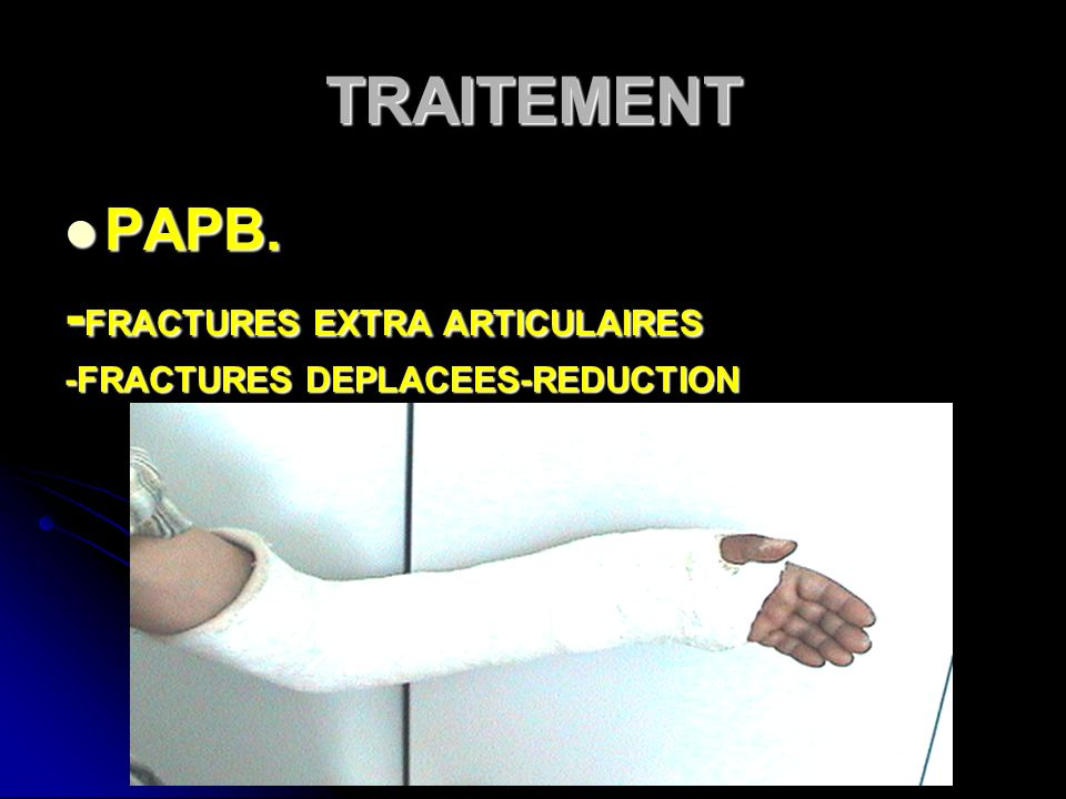 TRAITEMENT PAPB. -FRACTURES EXTRA ARTICULAIRES