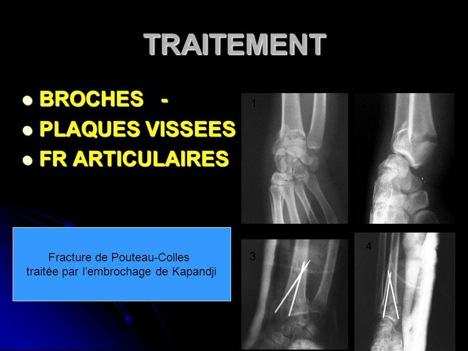 Fracture de Pouteau-Colles traitée par l'embrochage de Kapandji