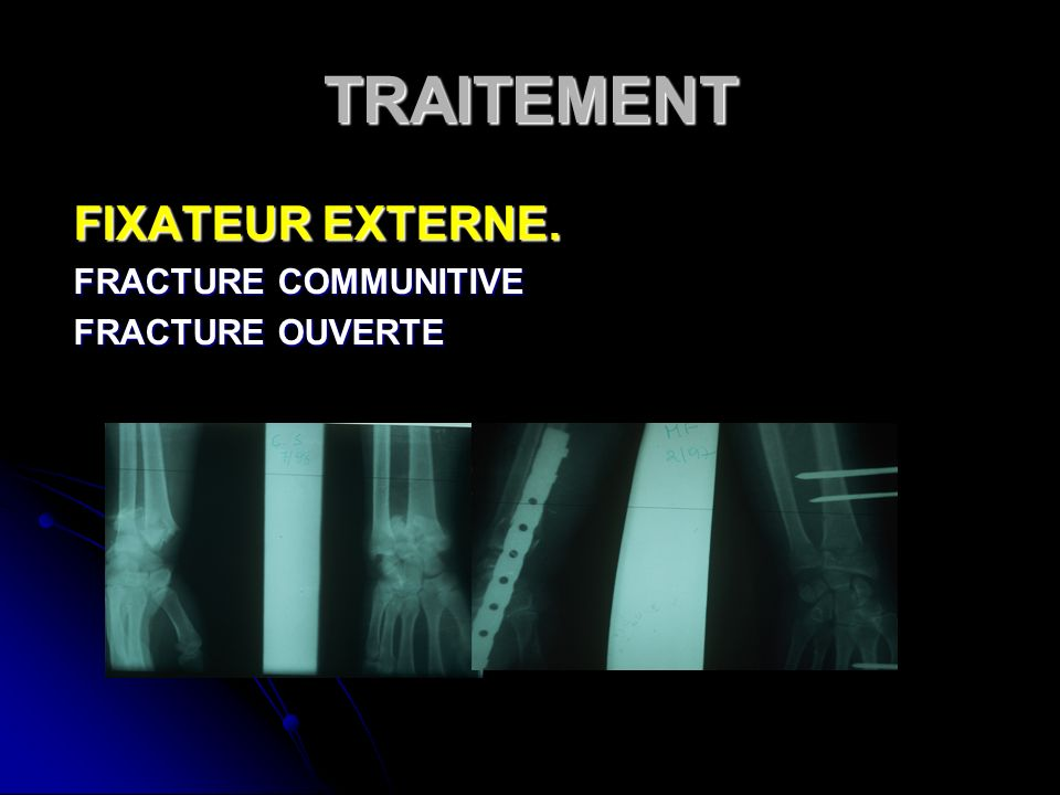TRAITEMENT FIXATEUR EXTERNE. FRACTURE COMMUNITIVE FRACTURE OUVERTE