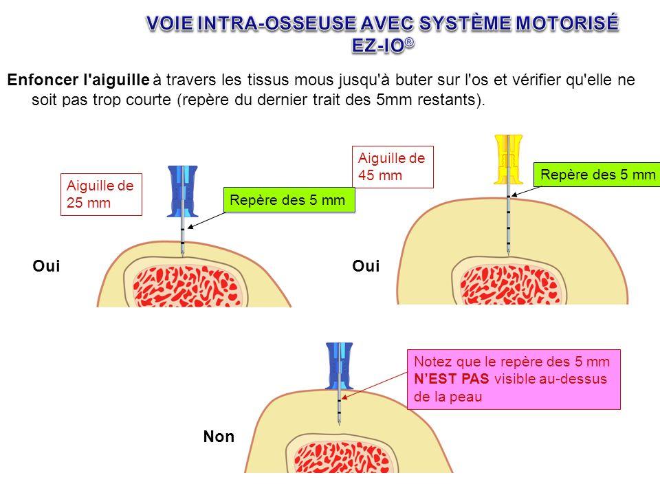 VOIE INTRA-OSSEUSE AVEC SYSTÈME MOTORISÉ