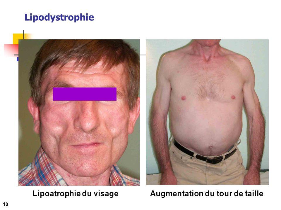 Lipoatrophie du visage Augmentation du tour de taille
