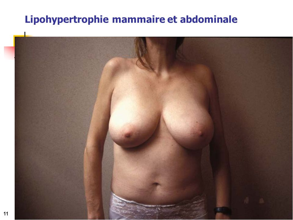 Lipohypertrophie mammaire et abdominale