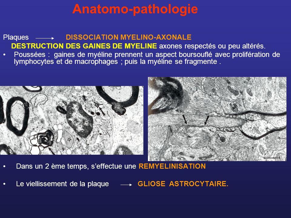 Anatomo-pathologie Plaques DISSOCIATION MYELINO-AXONALE