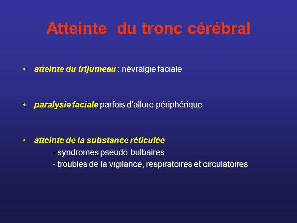 Atteinte du tronc cérébral