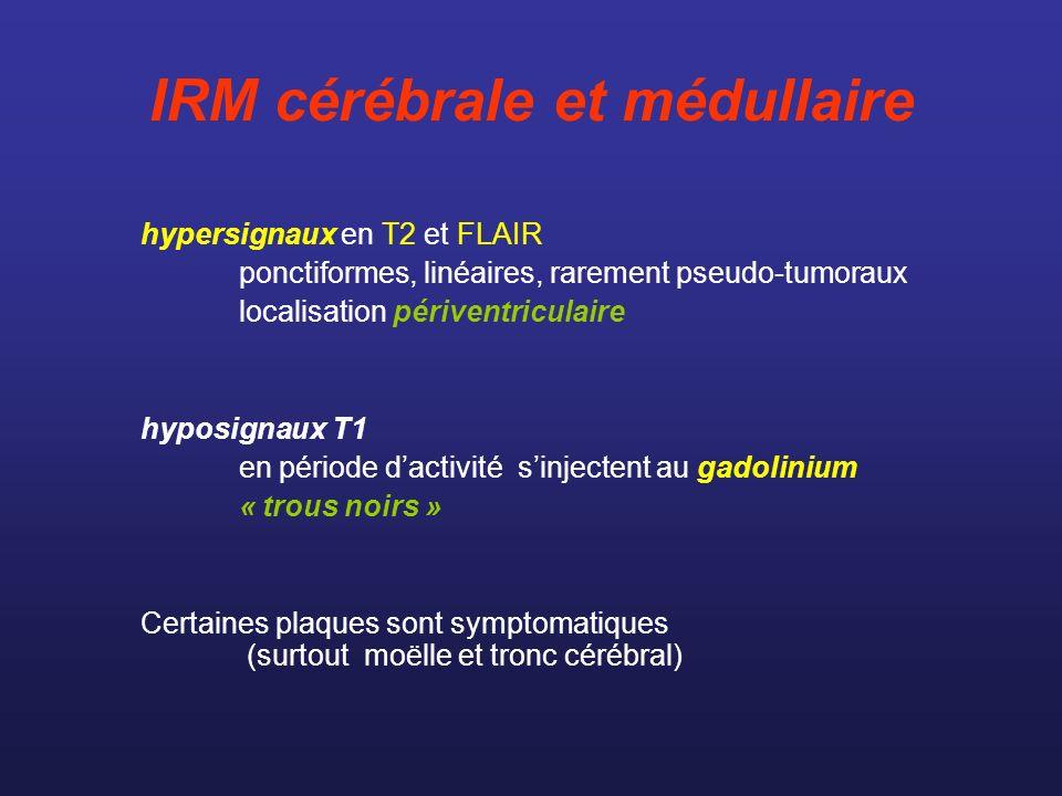 IRM cérébrale et médullaire