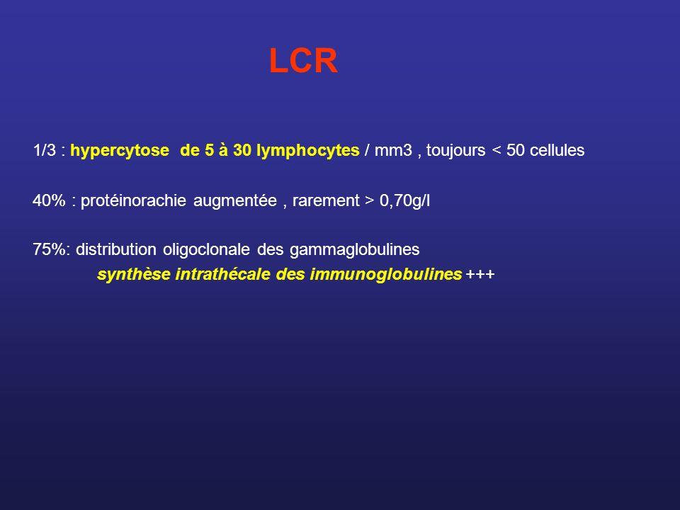 LCR 1/3 : hypercytose de 5 à 30 lymphocytes / mm3 , toujours < 50 cellules. 40% : protéinorachie augmentée , rarement > 0,70g/l.