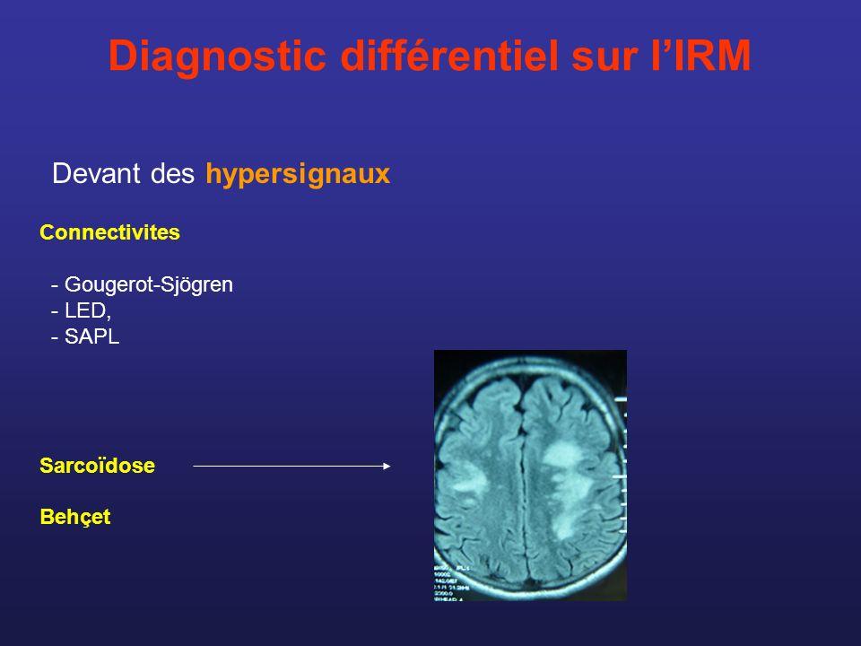 Diagnostic différentiel sur l'IRM