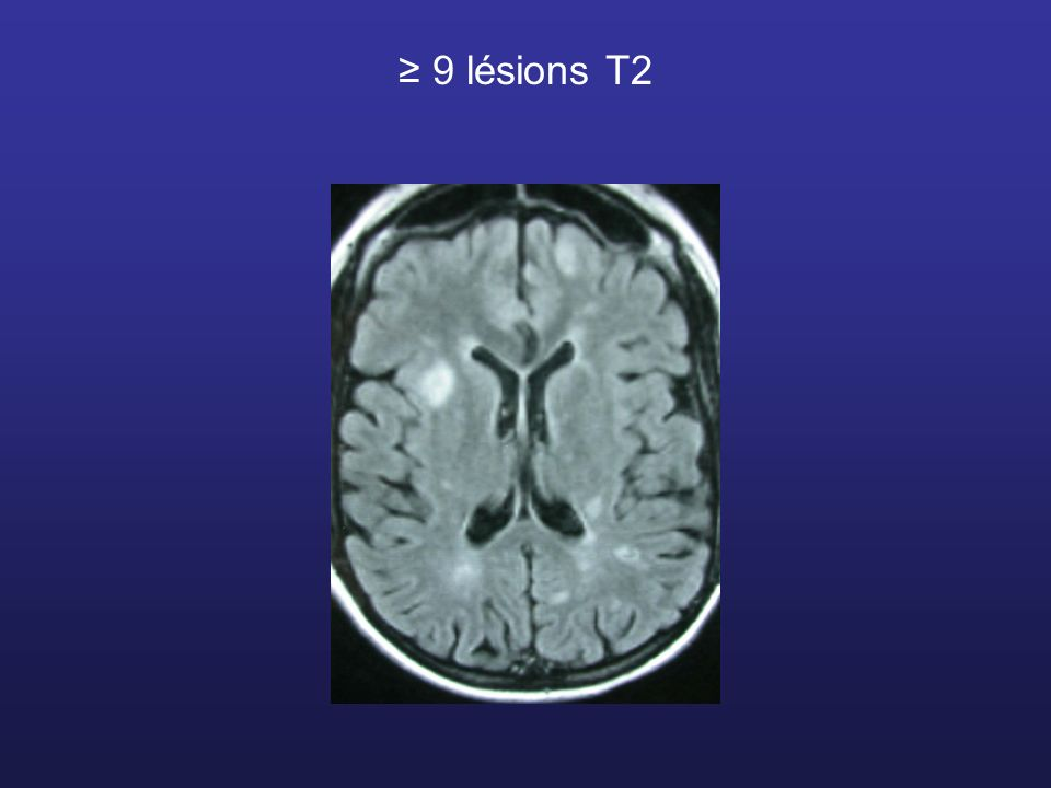 ≥ 9 lésions T2