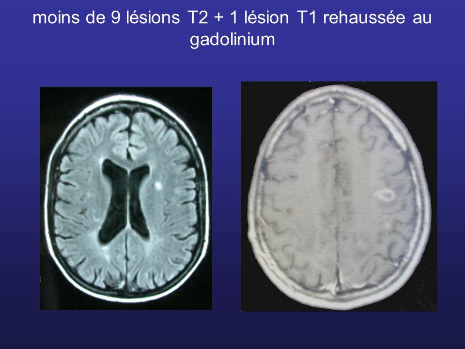 moins de 9 lésions T2 + 1 lésion T1 rehaussée au gadolinium
