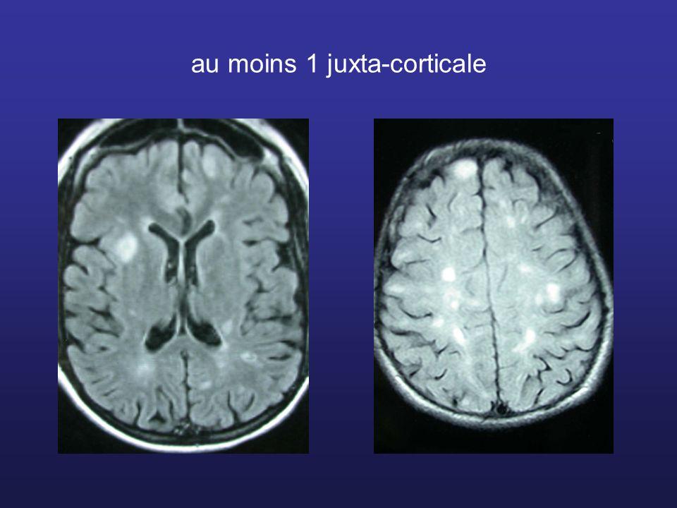 au moins 1 juxta-corticale