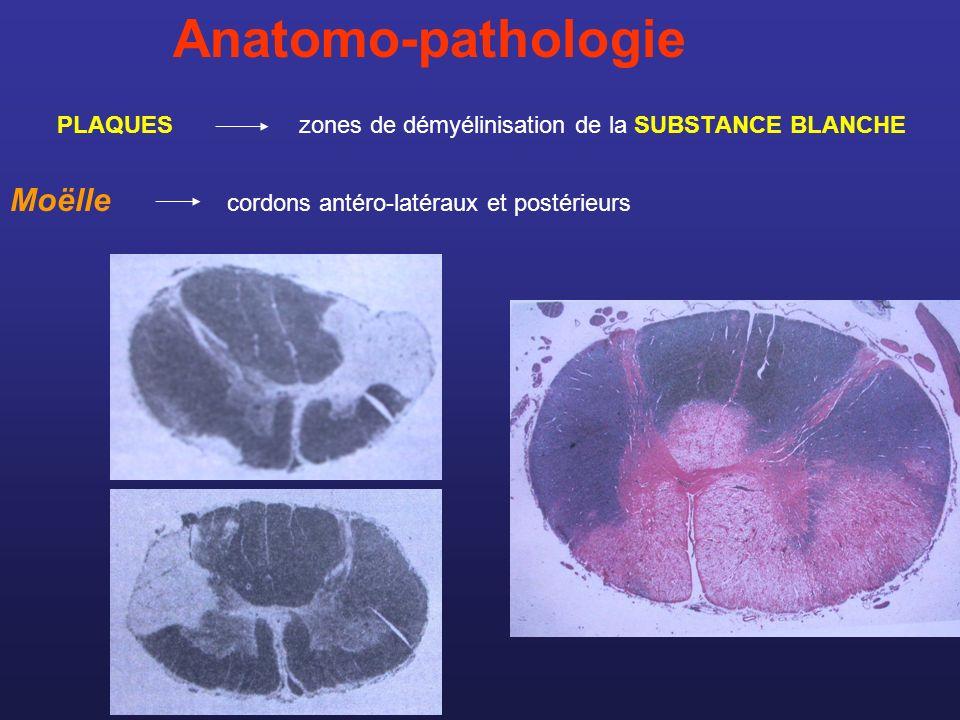 Anatomo-pathologie Moëlle cordons antéro-latéraux et postérieurs