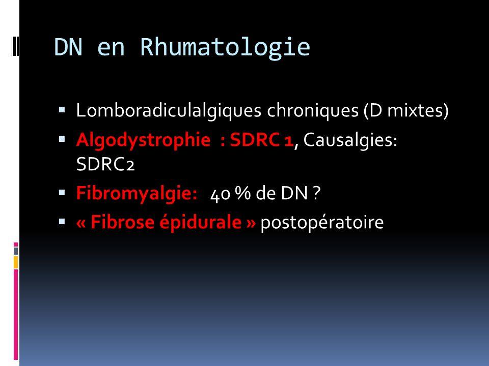 DN en Rhumatologie Lomboradiculalgiques chroniques (D mixtes)