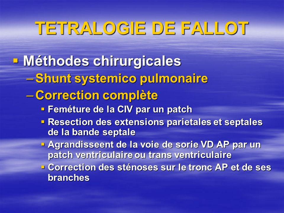 TETRALOGIE DE FALLOT Méthodes chirurgicales Shunt systemico pulmonaire