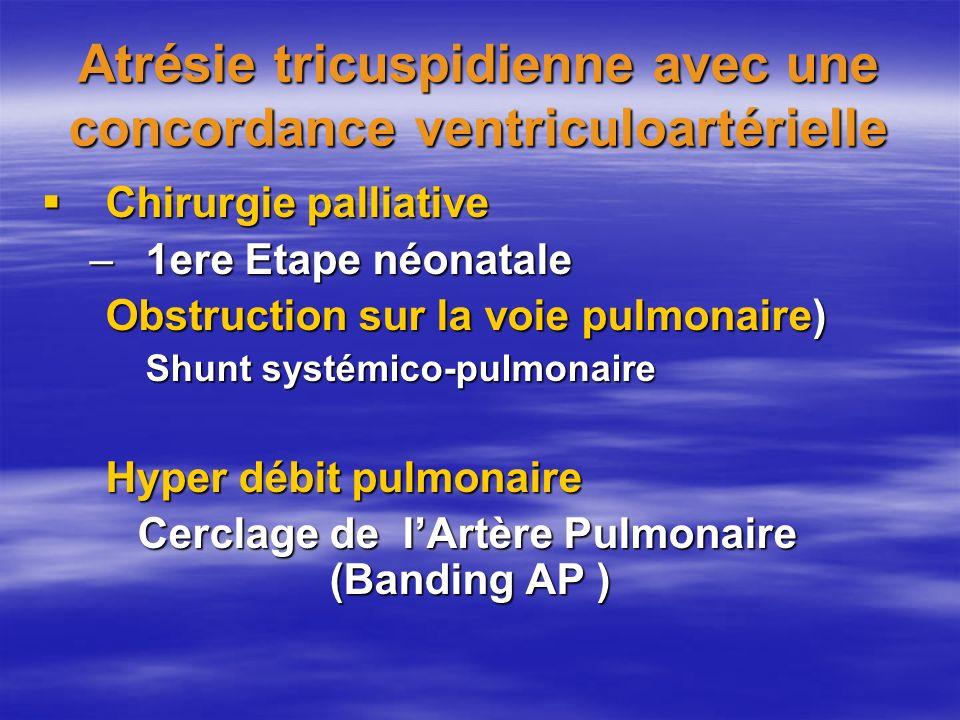 Atrésie tricuspidienne avec une concordance ventriculoartérielle