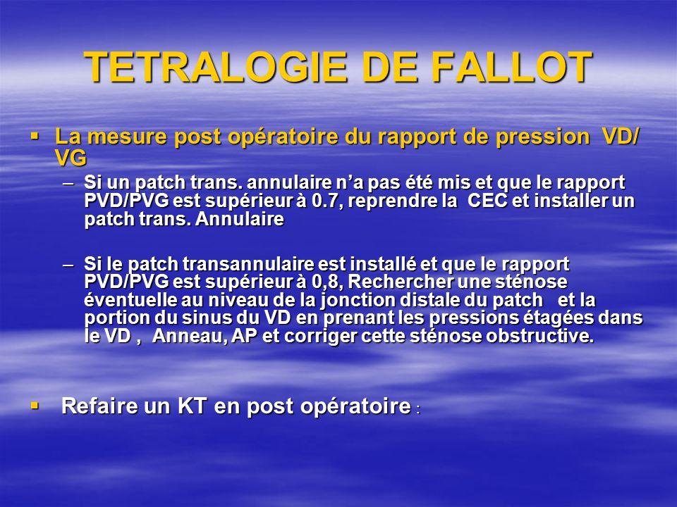 TETRALOGIE DE FALLOT La mesure post opératoire du rapport de pression VD/ VG.