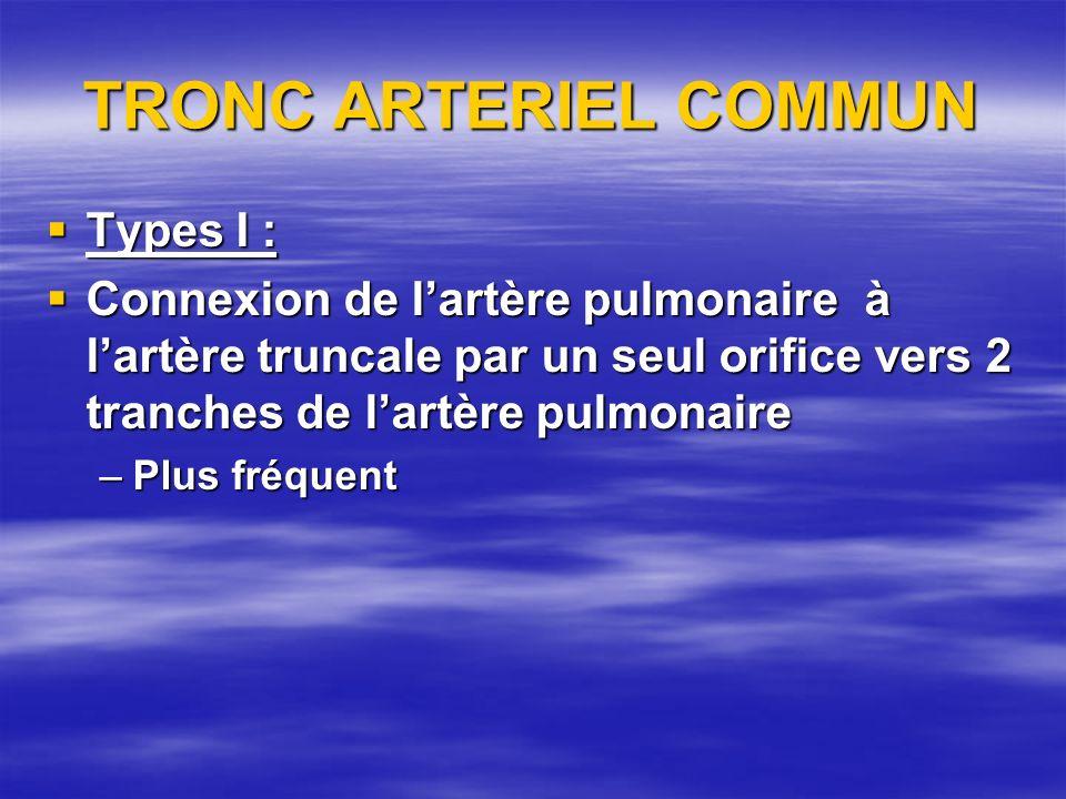 TRONC ARTERIEL COMMUN Types I :