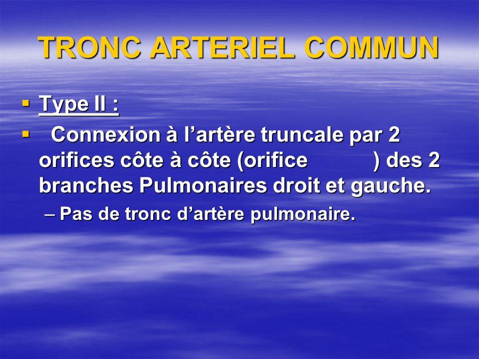 TRONC ARTERIEL COMMUN Type II :