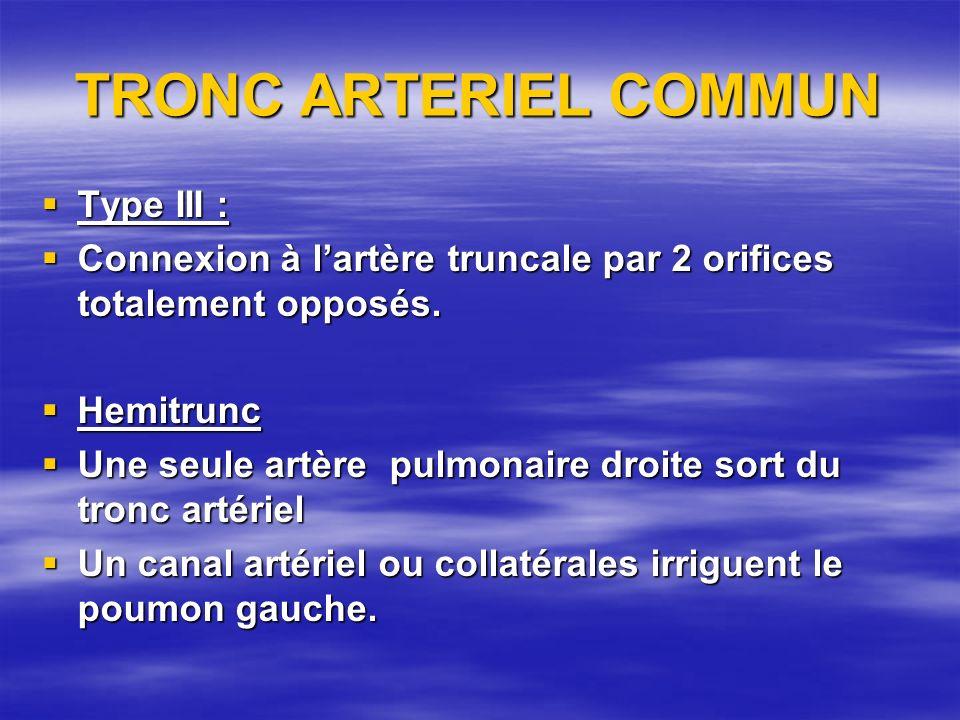 TRONC ARTERIEL COMMUN Type III :