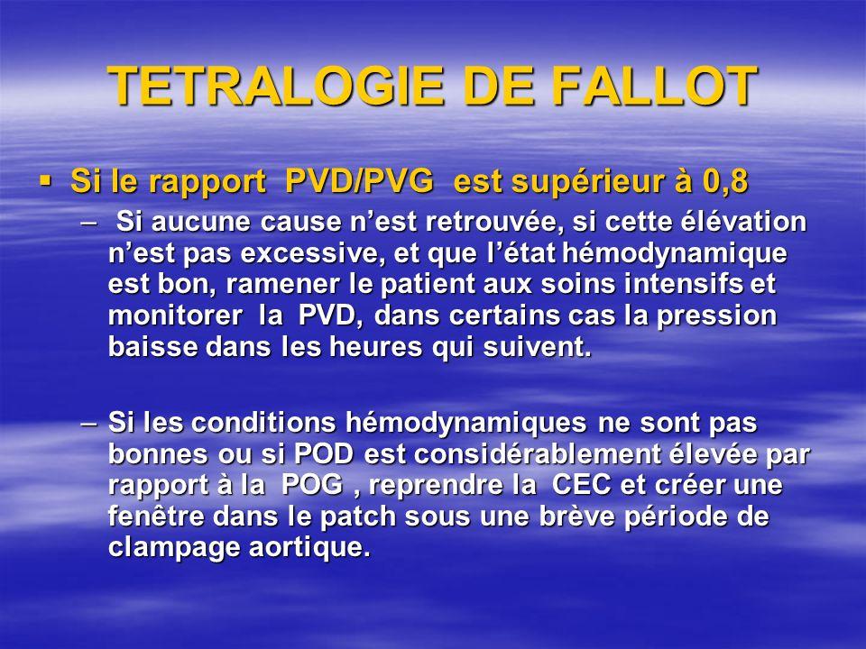 TETRALOGIE DE FALLOT Si le rapport PVD/PVG est supérieur à 0,8