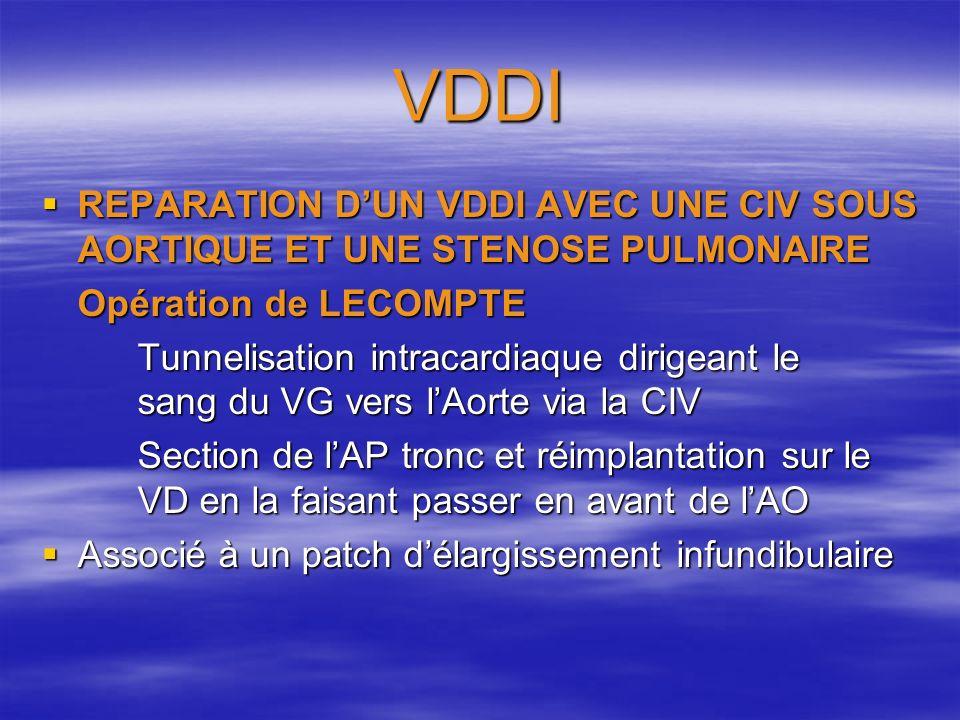 VDDI REPARATION D'UN VDDI AVEC UNE CIV SOUS AORTIQUE ET UNE STENOSE PULMONAIRE. Opération de LECOMPTE.