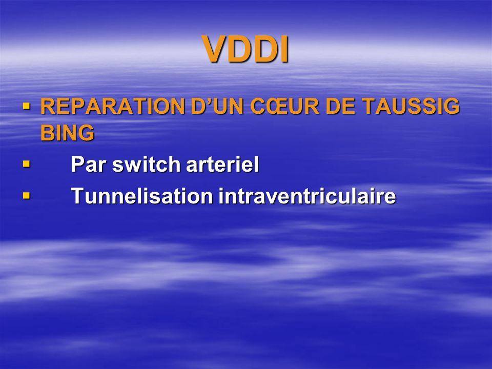 VDDI REPARATION D'UN CŒUR DE TAUSSIG BING Par switch arteriel