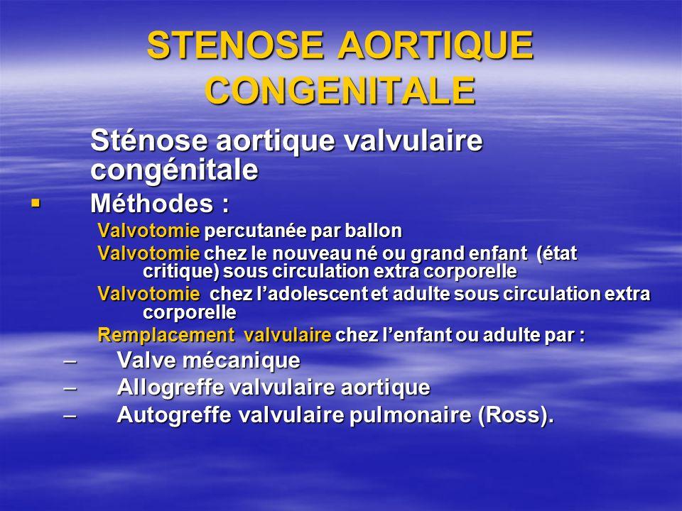 STENOSE AORTIQUE CONGENITALE