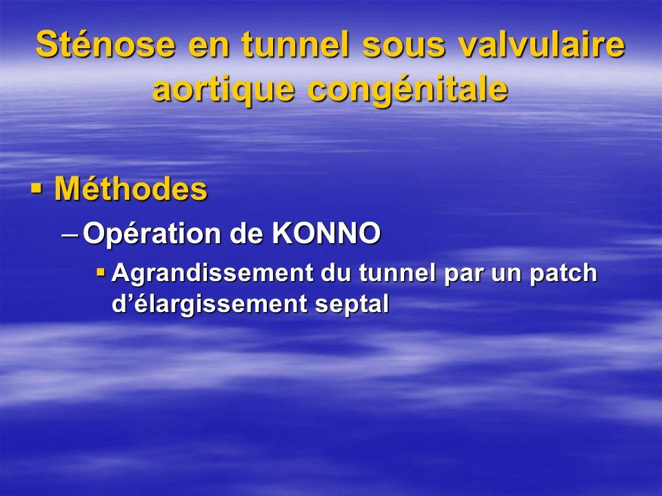 Sténose en tunnel sous valvulaire aortique congénitale