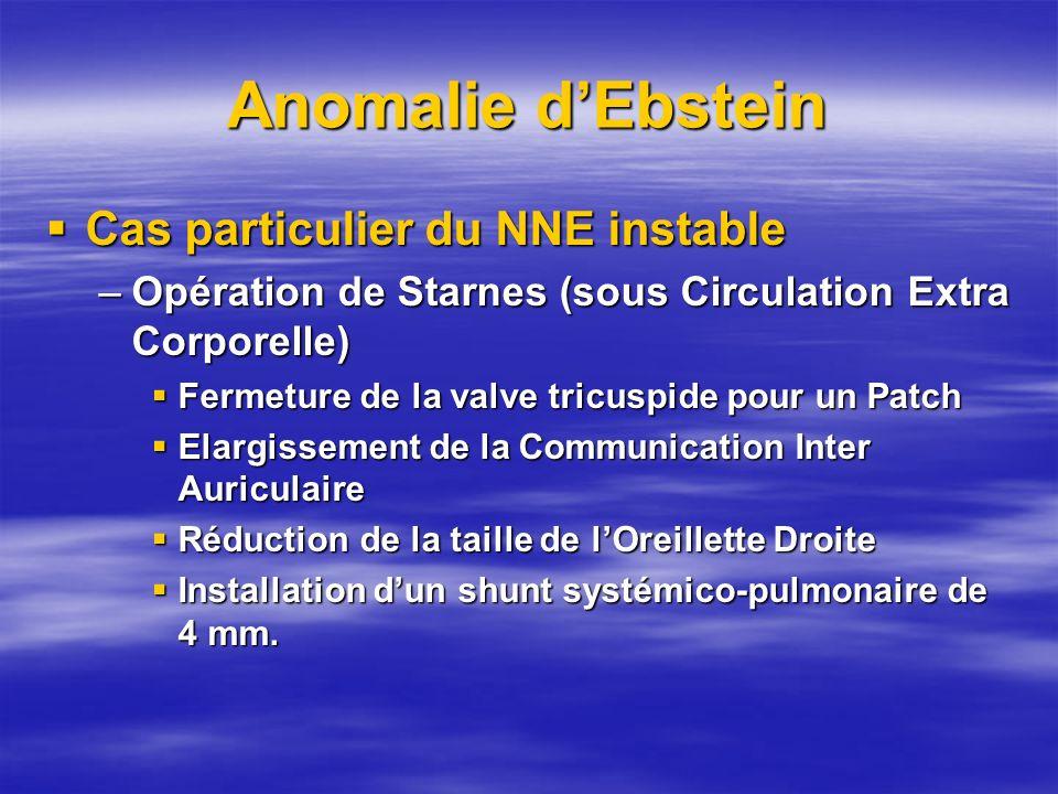 Anomalie d'Ebstein Cas particulier du NNE instable