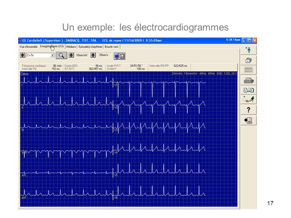 Un exemple: les électrocardiogrammes