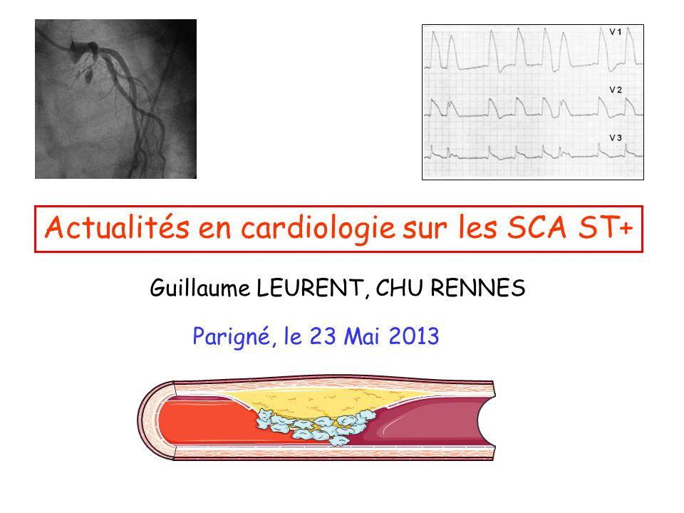 Actualités en cardiologie sur les SCA ST+