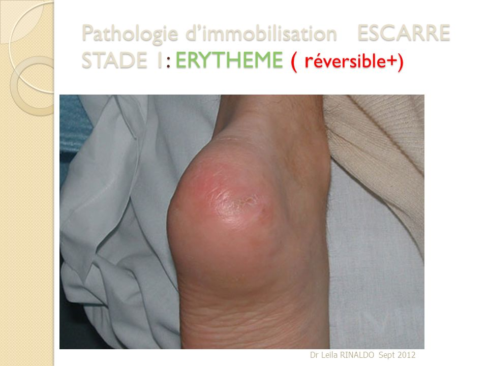 Pathologie d'immobilisation ESCARRE STADE 1: ERYTHEME ( réversible+)