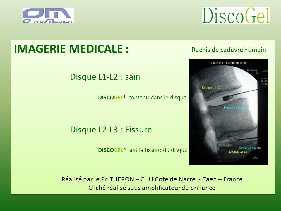 IMAGERIE MEDICALE : Disque L1-L2 : sain Disque L2-L3 : Fissure
