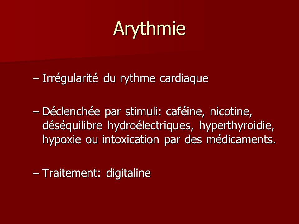 Arythmie Irrégularité du rythme cardiaque