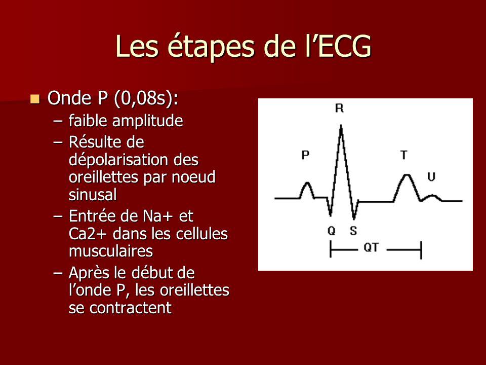 Les étapes de l'ECG Onde P (0,08s): faible amplitude