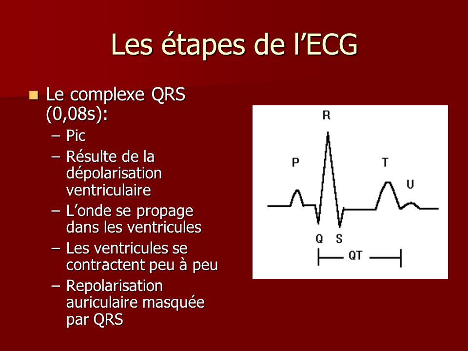 Les étapes de l'ECG Le complexe QRS (0,08s): Pic