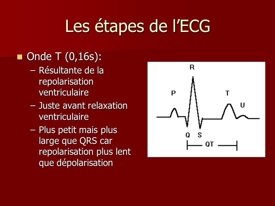 Les étapes de l'ECG Onde T (0,16s):
