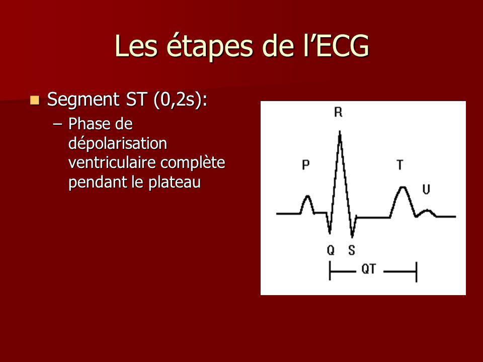 Les étapes de l'ECG Segment ST (0,2s):