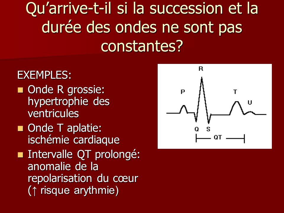 Qu'arrive-t-il si la succession et la durée des ondes ne sont pas constantes