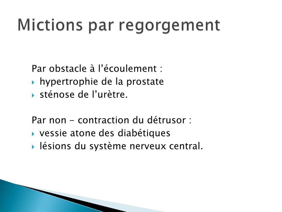 Mictions par regorgement