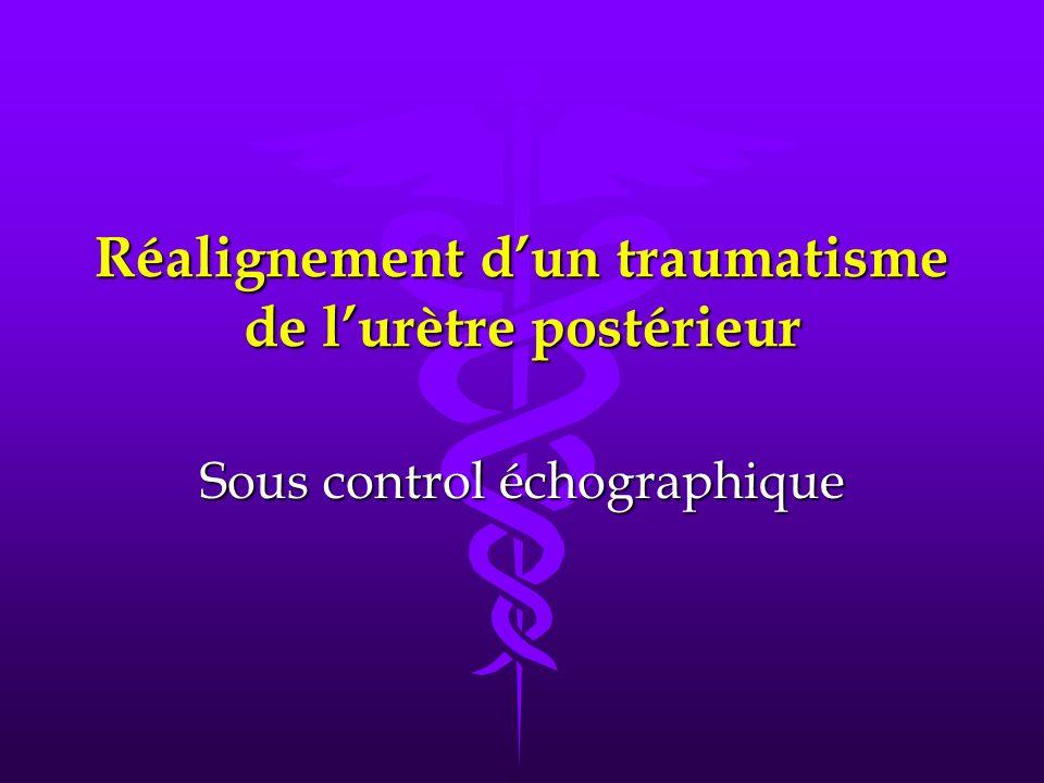 Réalignement d'un traumatisme de l'urètre postérieur