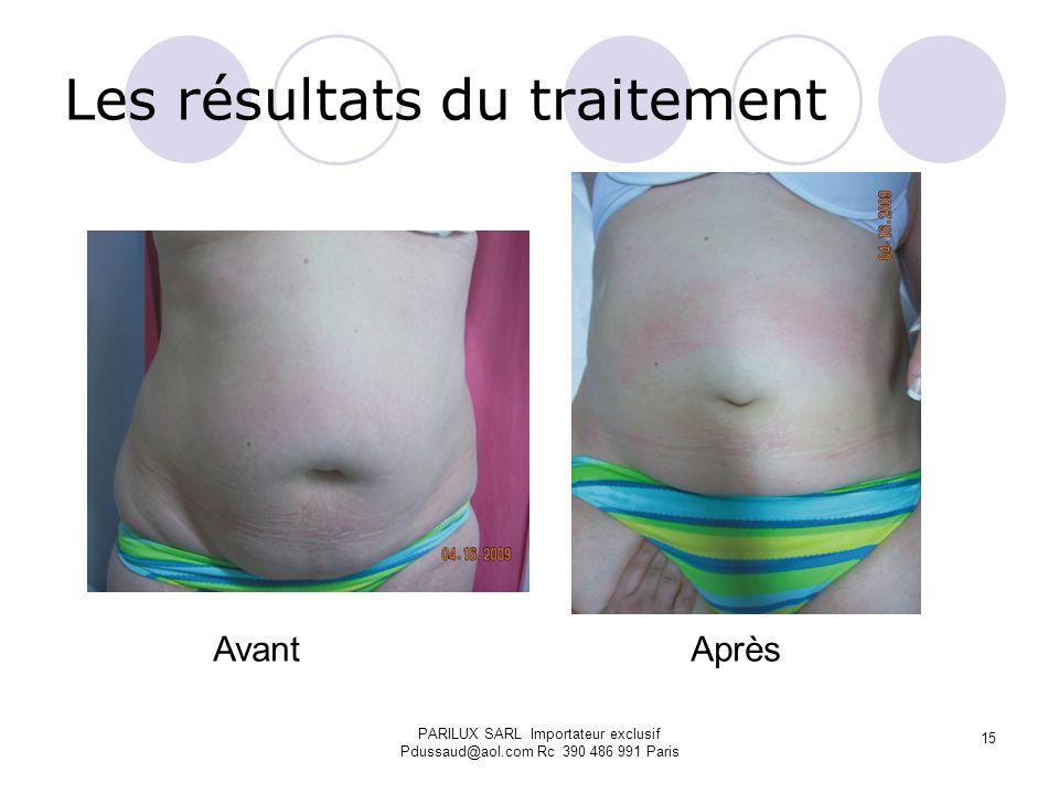Les résultats du traitement