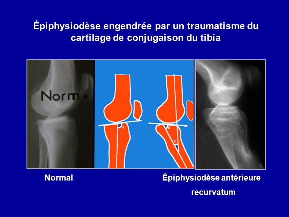 Épiphysiodèse engendrée par un traumatisme du cartilage de conjugaison du tibia