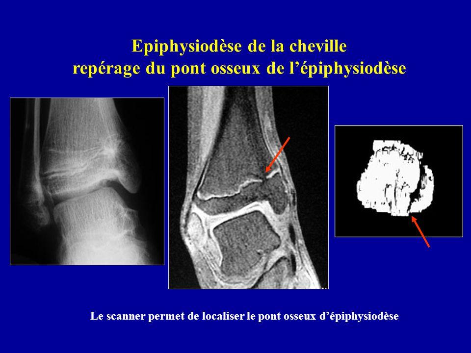 Epiphysiodèse de la cheville