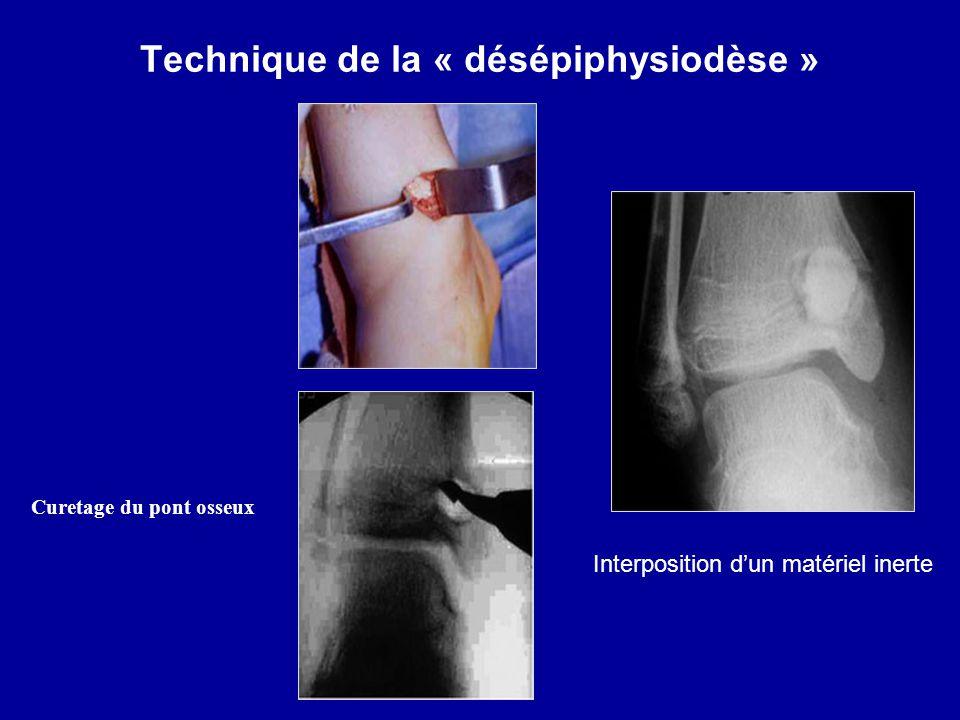 Technique de la « désépiphysiodèse »