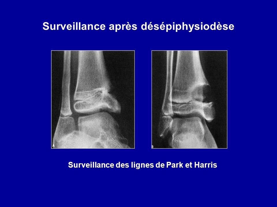 Surveillance après désépiphysiodèse