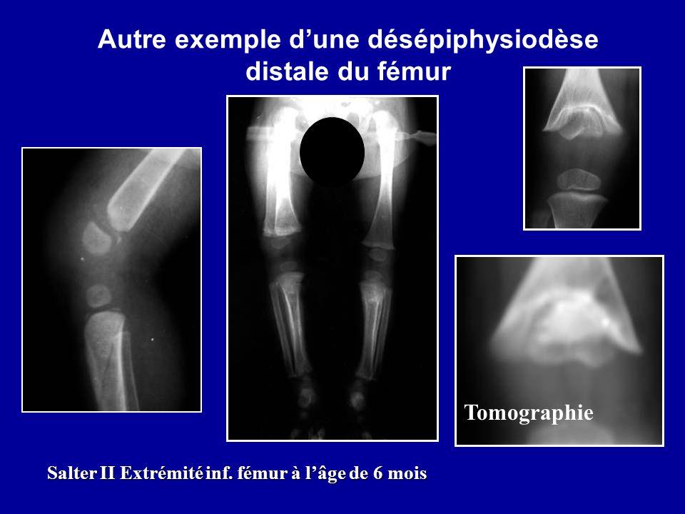 Autre exemple d'une désépiphysiodèse distale du fémur