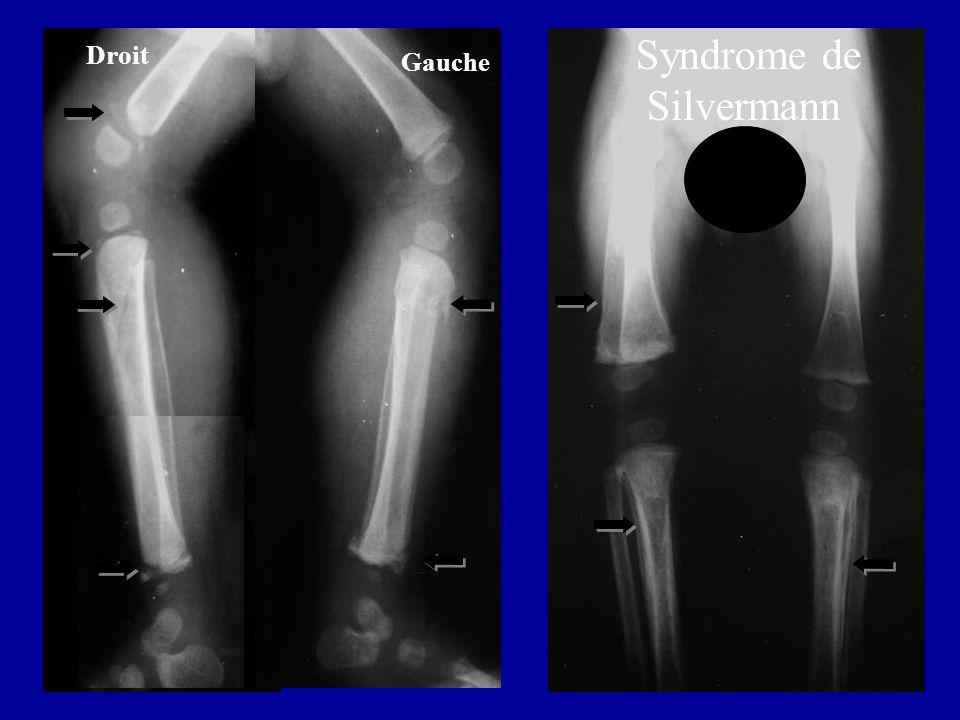 Droit Gauche Syndrome de Silvermann