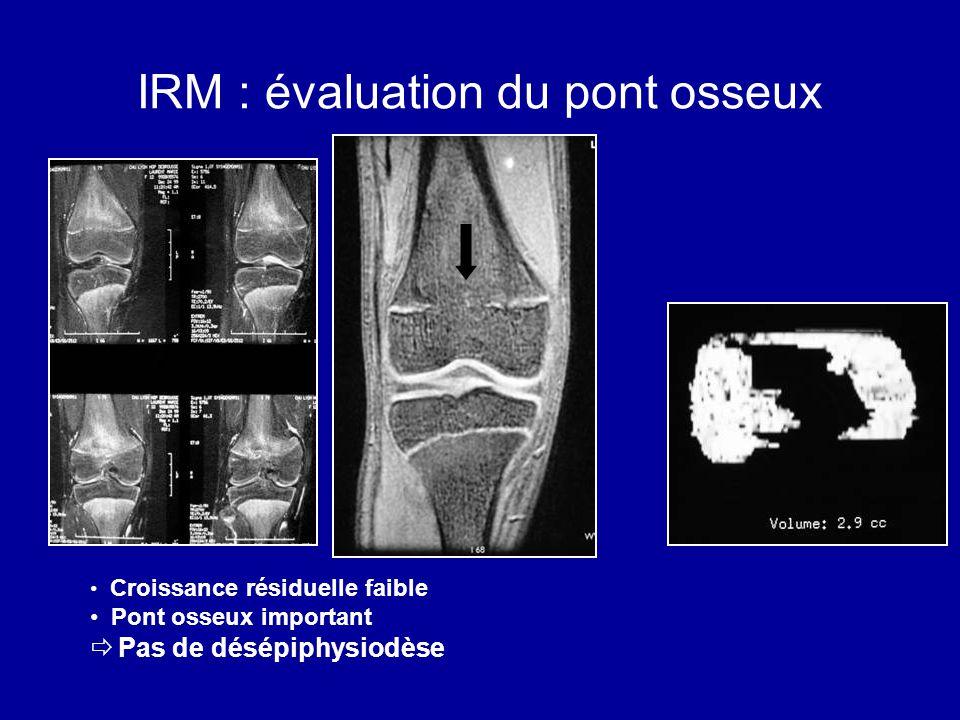 IRM : évaluation du pont osseux