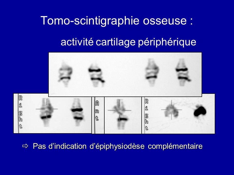Tomo-scintigraphie osseuse : activité cartilage périphérique