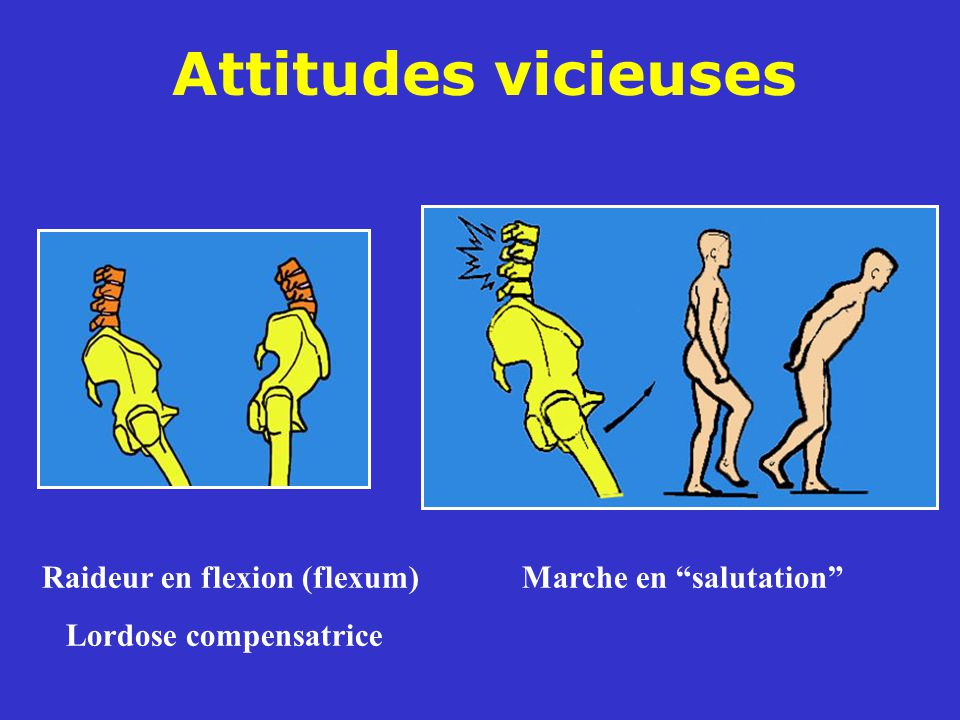 Attitudes vicieuses Raideur en flexion (flexum) Marche en salutation